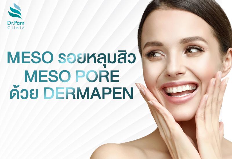 Meso รอยหลุมสิว / Meso Pore ด้วย Dermapen